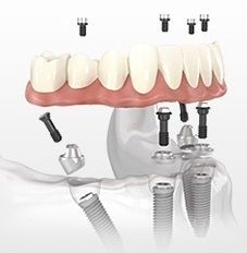implantes dentales en seo